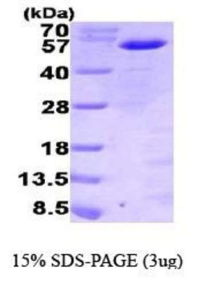 Novus BiologicalsHuman MNDA Protein 0.1mg; Unlabeled:Biochemical Reagents