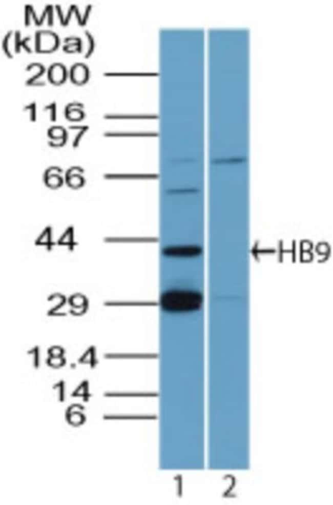 anti-MNX1/HLXB9, Polyclonal, Novus Biologicals:Antibodies:Primary Antibodies