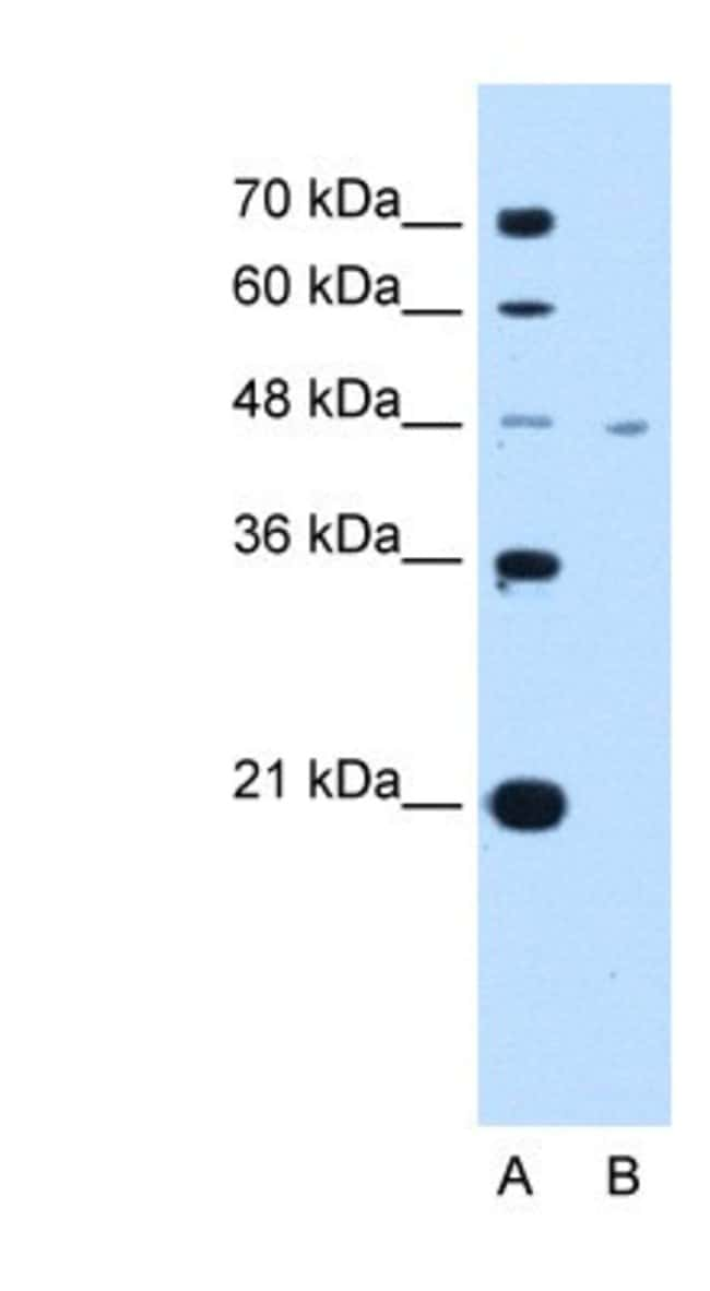 anti-MCT1/SLC16A1, Polyclonal, Novus Biologicals:Antibodies:Primary Antibodies