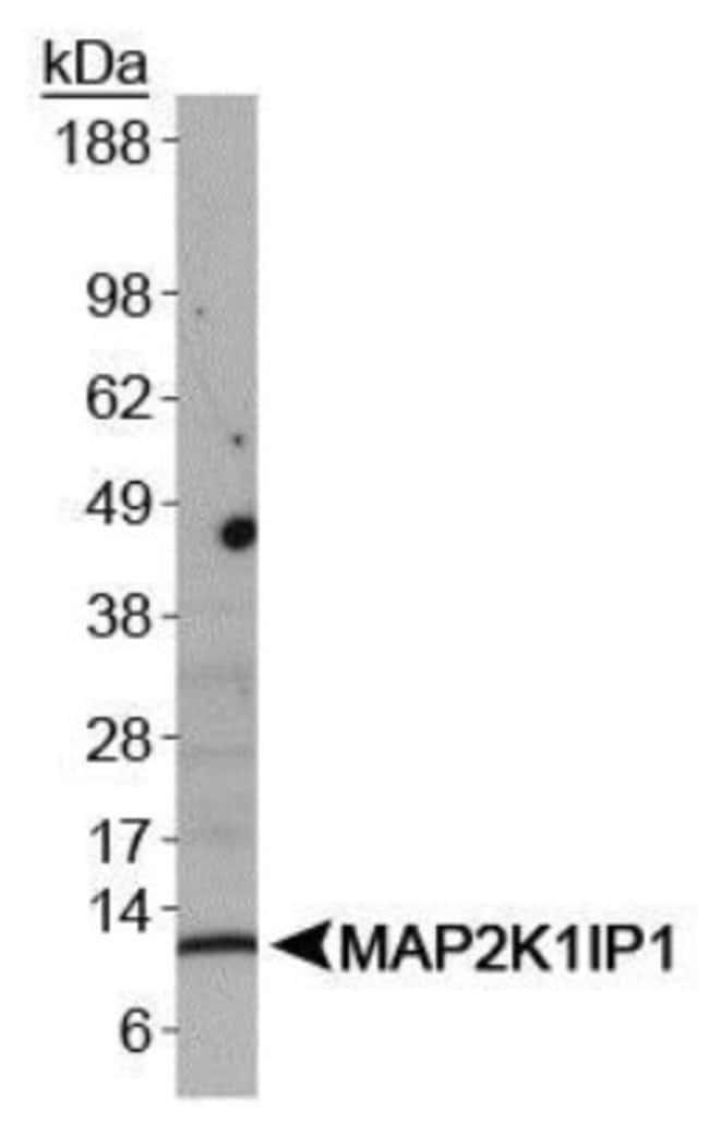 anti-MP1/MAP2K1IP1, Polyclonal, Novus Biologicals:Antibodies:Primary Antibodies