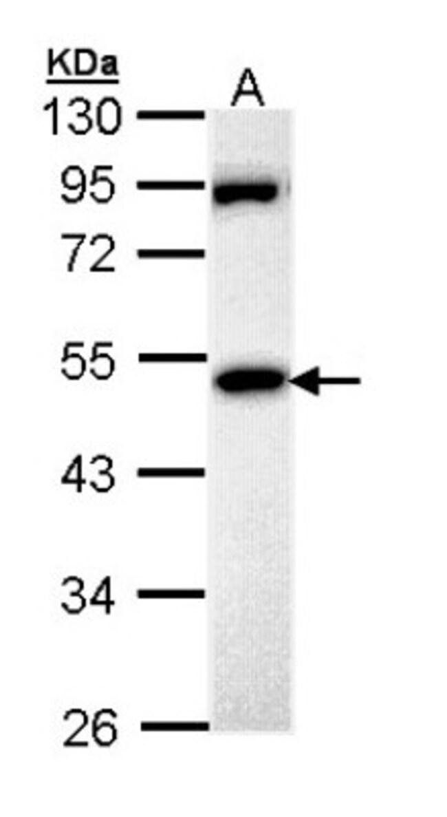 anti-MPP1, Polyclonal, Novus Biologicals 0.1mL; Unlabeled:Life Sciences