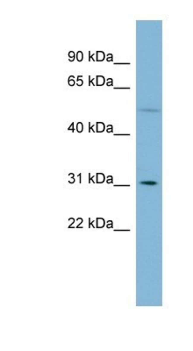 MRPL28 Rabbit anti-Human, Polyclonal, Novus Biologicals 20µL; Unlabeled