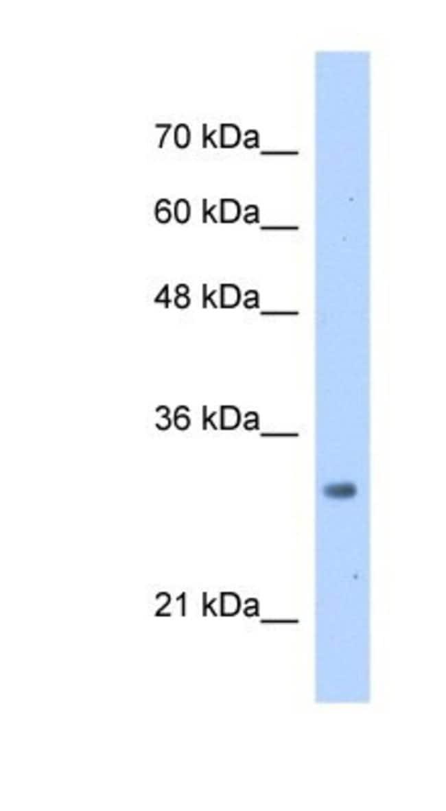 MRTO4 Rabbit anti-Human, Polyclonal, Novus Biologicals 100µL; Unlabeled:Life