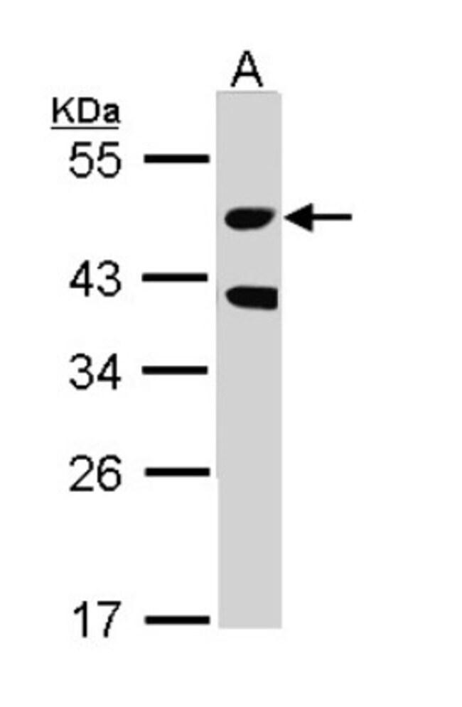 anti-MST3, Polyclonal, Novus Biologicals 0.1mL; Unlabeled:Life Sciences