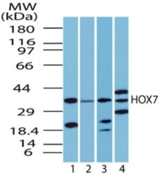 anti-MSX1, Polyclonal, Novus Biologicals:Antibodies:Primary Antibodies