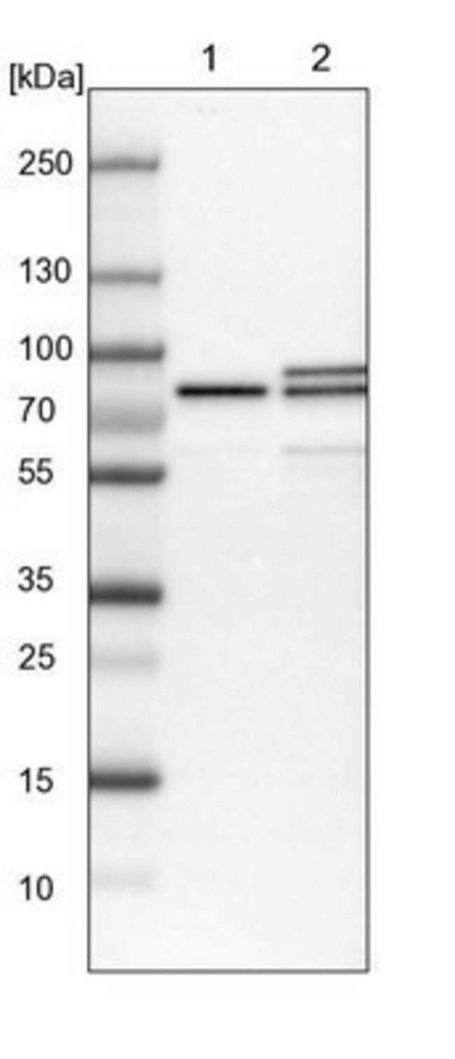 anti-MTA2, Polyclonal, Novus Biologicals 0.1mL; Unlabeled:Life Sciences