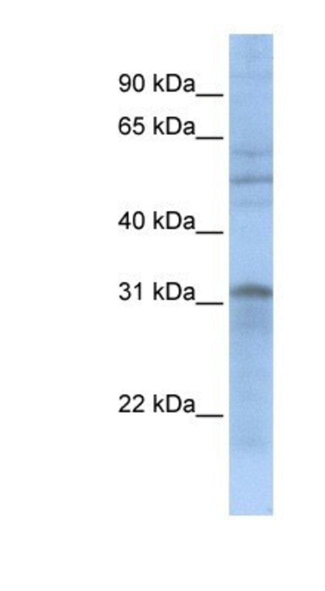MTCH2 Rabbit anti-Human, Polyclonal, Novus Biologicals 100µL; Unlabeled:Life