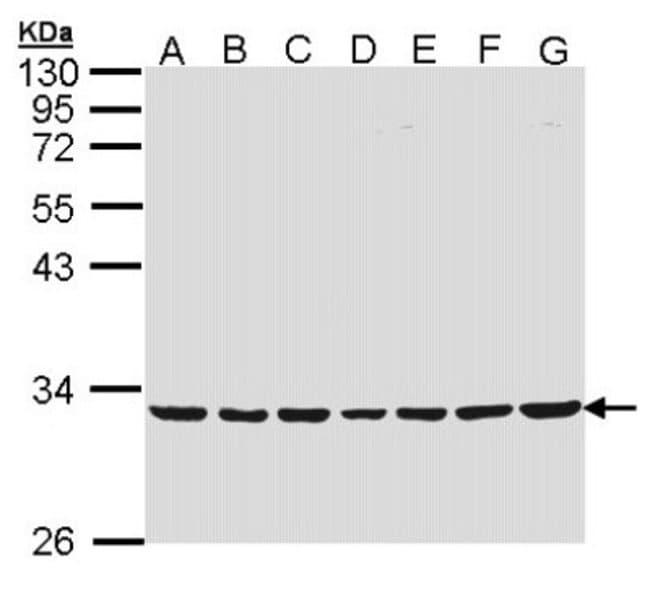 anti-MTHFD2, Polyclonal, Novus Biologicals 0.1mL; Unlabeled:Antibodies