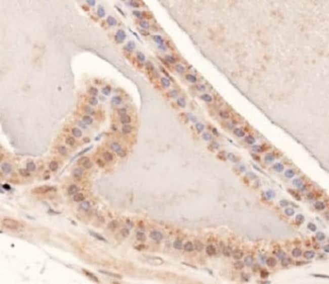 anti-MUC-4, Polyclonal, Novus Biologicals:Antibodies:Primary Antibodies