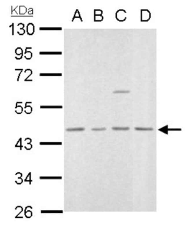 anti-MVD, Polyclonal, Novus Biologicals 0.1mg; Unlabeled:Life Sciences