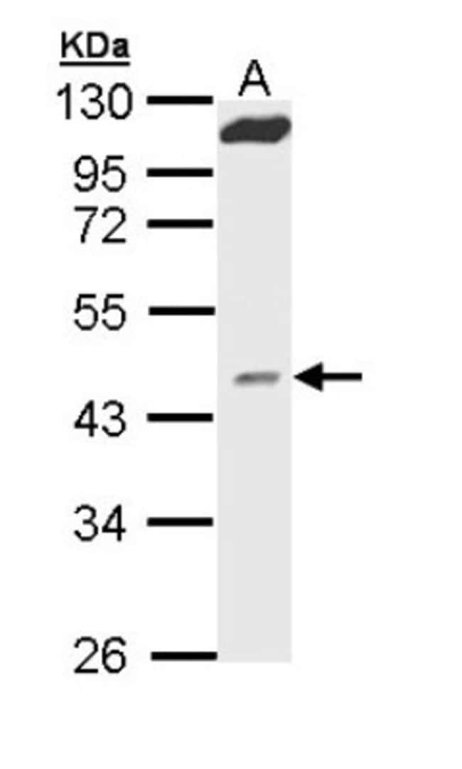 anti-MVD, Polyclonal, Novus Biologicals 0.1mg; Unlabeled:Antibodies