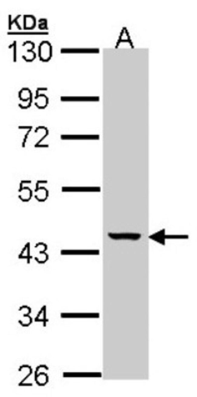 anti-MVK, Polyclonal, Novus Biologicals 0.1mg; Unlabeled:Life Sciences