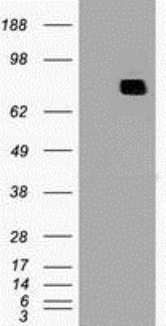 MxA/Mx1 Mouse anti-Human, Mouse, Clone: OTI2G12, Novus Biologicals 0.1mL;