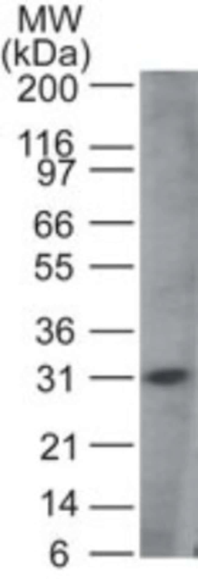 anti-MyD88, Polyclonal, Novus Biologicals:Antibodies:Primary Antibodies
