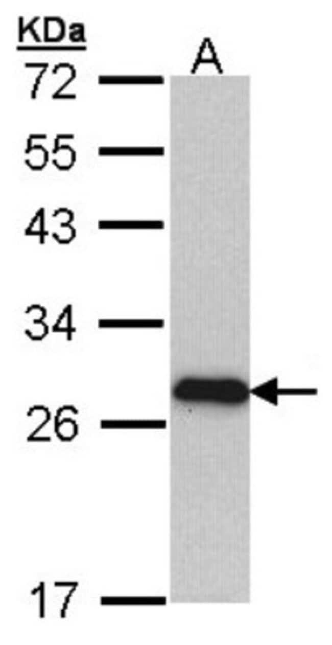 anti-Myosin light chain 3, Polyclonal, Novus Biologicals 0.1mL; Unlabeled:Antibodies