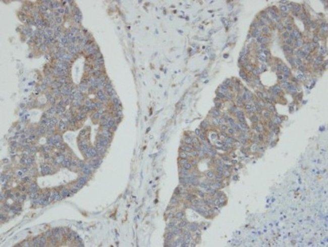 anti-N myc interactor, Polyclonal, Novus Biologicals 0.1mL; Unlabeled:Antibodies