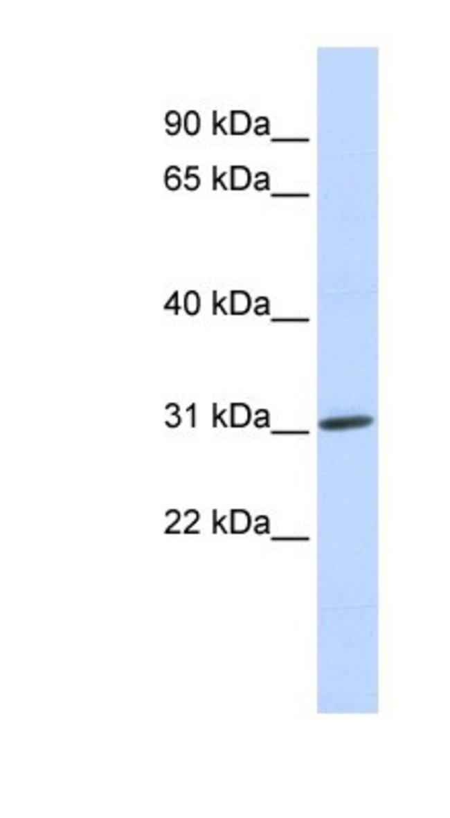 NAA10 Rabbit anti-Human, Polyclonal, Novus Biologicals 20µL; Unlabeled