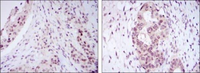 anti-NAC1, Clone: 6H2, Novus Biologicals 0.1mL; Unlabeled:Life Sciences