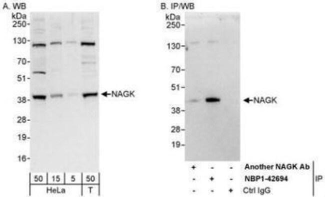 anti-N-Acetyl-D-Glucosamine Kinase/NAGK, Polyclonal, Novus Biologicals