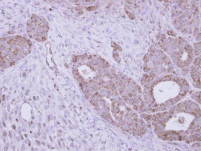 anti-N-Acetylgalactosamine-6-Sulfatase/GALNS, Polyclonal, Novus Biologicals