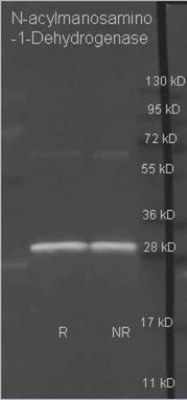 anti-N-acylmannosamine 1-dehydrogenase, Polyclonal, Novus Biologicals 2mL;