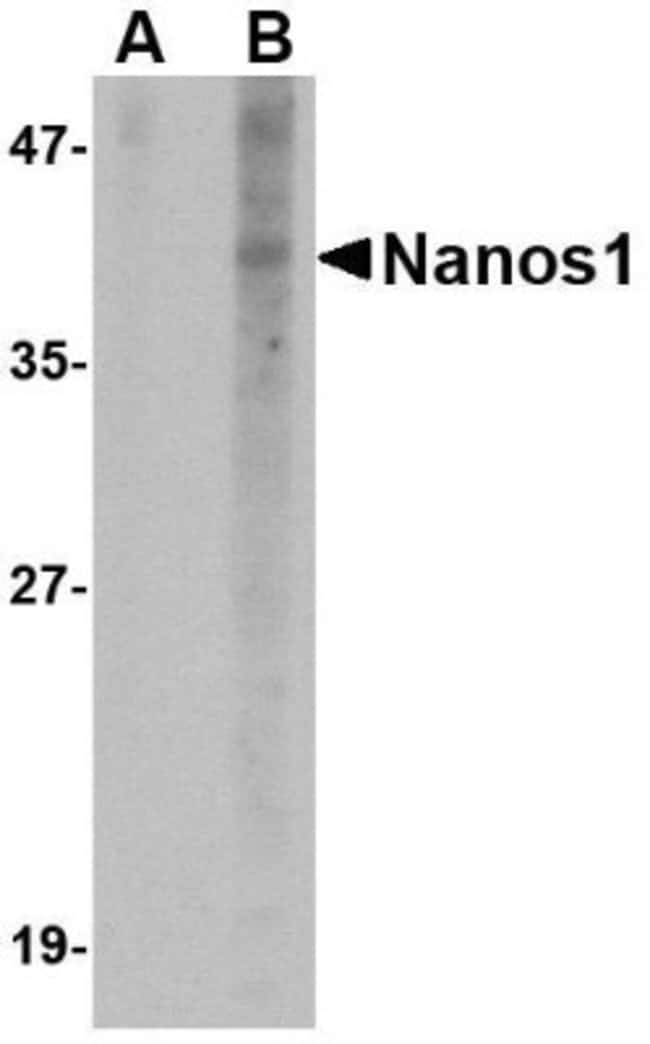 anti-NANOS1, Polyclonal, Novus Biologicals 0.1mg; Unlabeled:Life Sciences