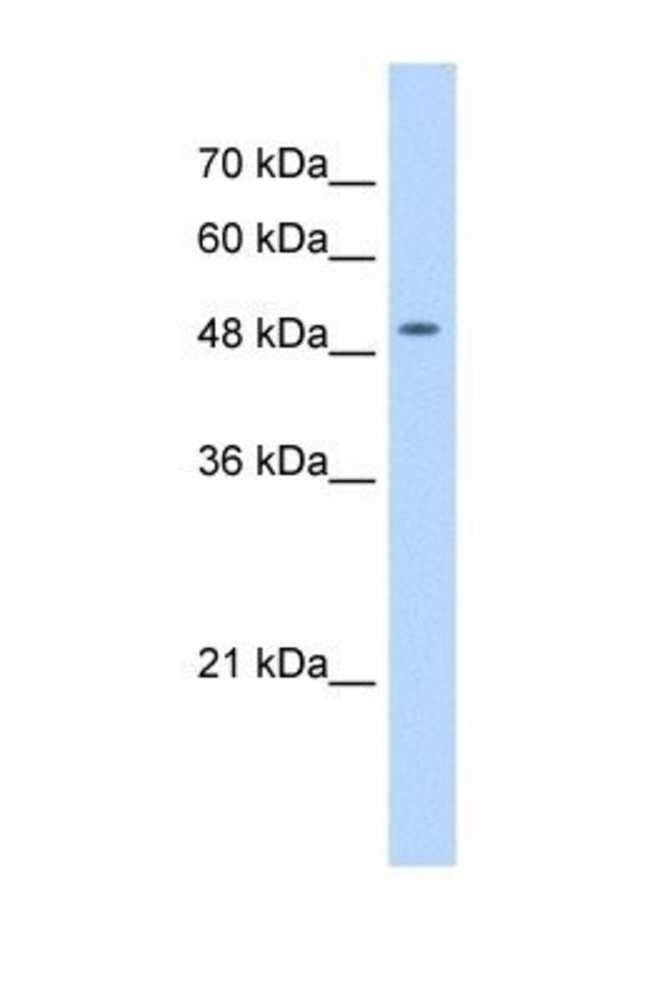 NARG1L Rabbit anti-Human, Polyclonal, Novus Biologicals 100µL; Unlabeled:Life
