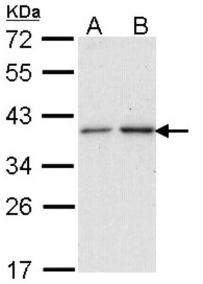 anti-NAT2, Polyclonal, Novus Biologicals 0.1mL; Unlabeled:Life Sciences