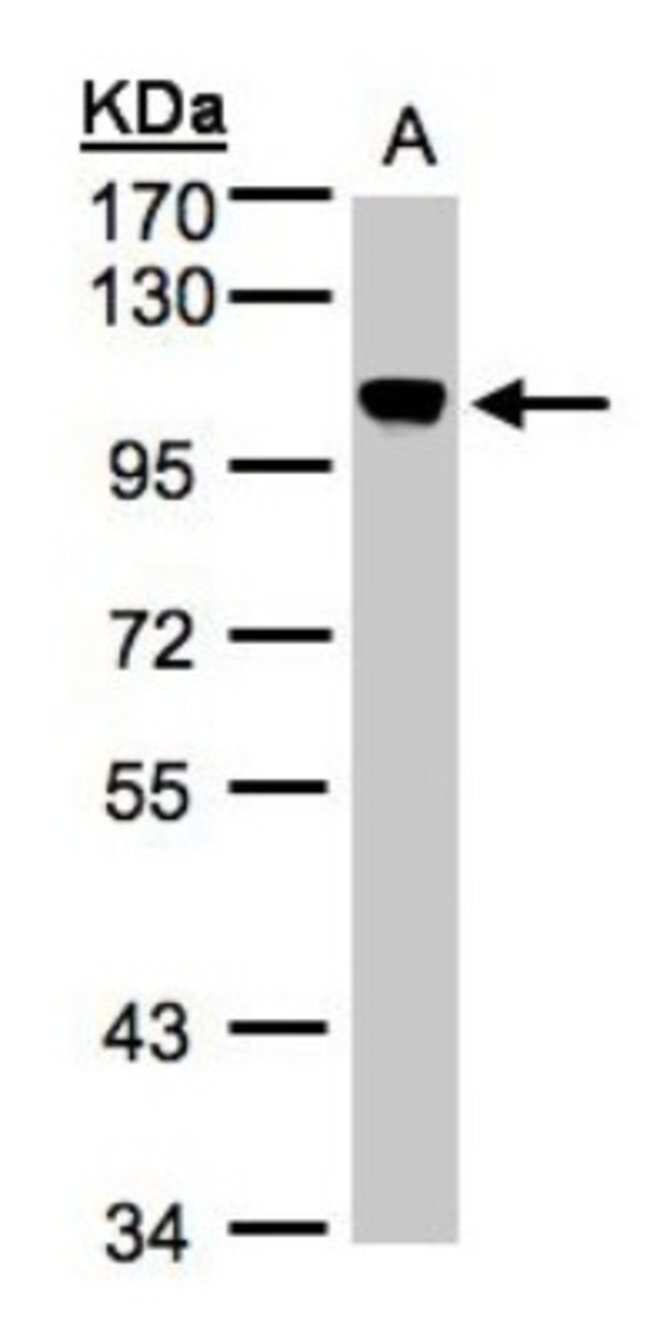 anti-NCAPH, Polyclonal, Novus Biologicals 0.1mg; Unlabeled:Life Sciences