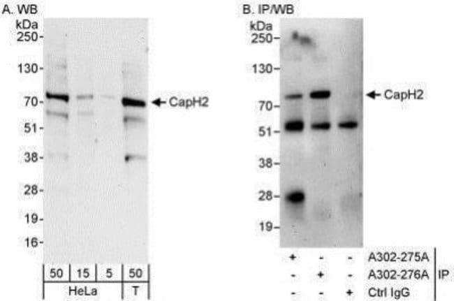 anti-NCAPH2, Polyclonal, Novus Biologicals 0.1mg; Unlabeled:Life Sciences