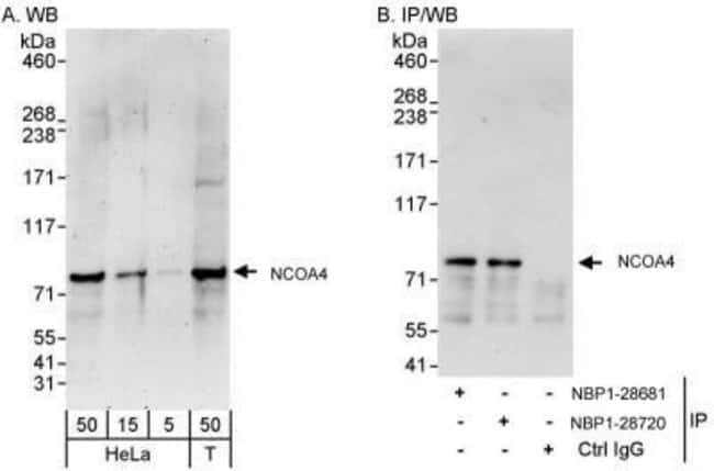 anti-NCOA4, Polyclonal, Novus Biologicals 0.1mg; Unlabeled:Life Sciences