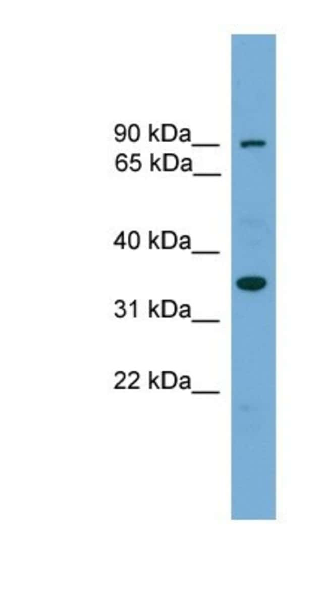 NDNL2 Rabbit anti-Human, Polyclonal, Novus Biologicals 20µL; Unlabeled