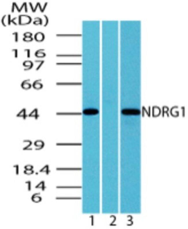 anti-NDRG1, Polyclonal, Novus Biologicals:Antibodies:Primary Antibodies
