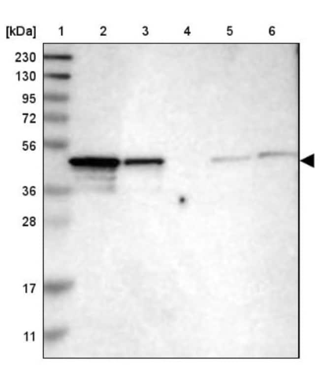 anti-NDRG3, Polyclonal, Novus Biologicals 0.1mL; Unlabeled:Life Sciences