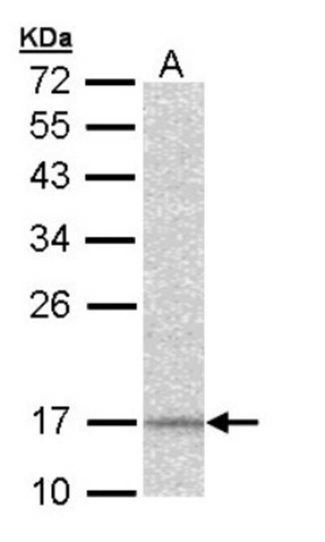 anti-NDUFA12, Polyclonal, Novus Biologicals 0.1mL; Unlabeled:Life Sciences
