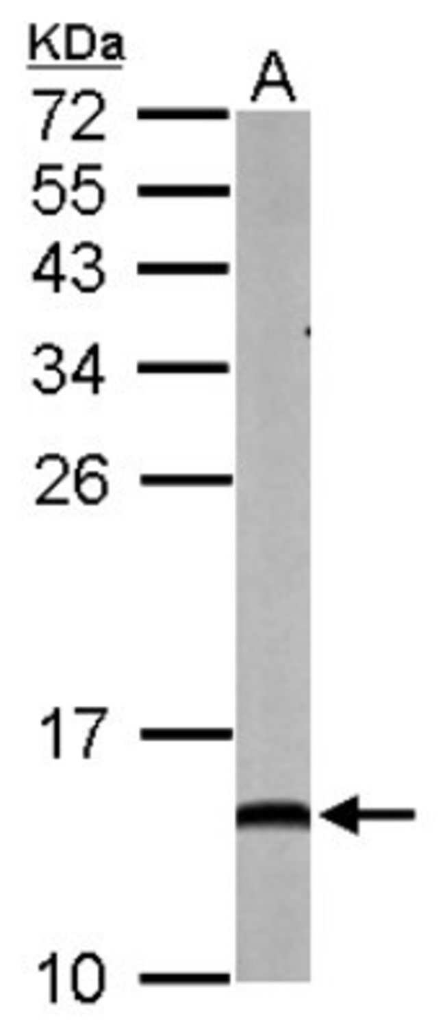 anti-NDUFA5, Polyclonal, Novus Biologicals 0.1mg; Unlabeled:Antibodies