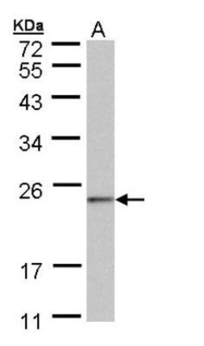 anti-NDUFAF4, Polyclonal, Novus Biologicals 0.1mg; Unlabeled:Antibodies