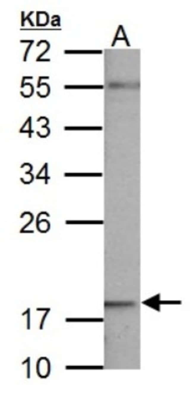 anti-NDUFB5, Polyclonal, Novus Biologicals 0.1mL; Unlabeled:Life Sciences