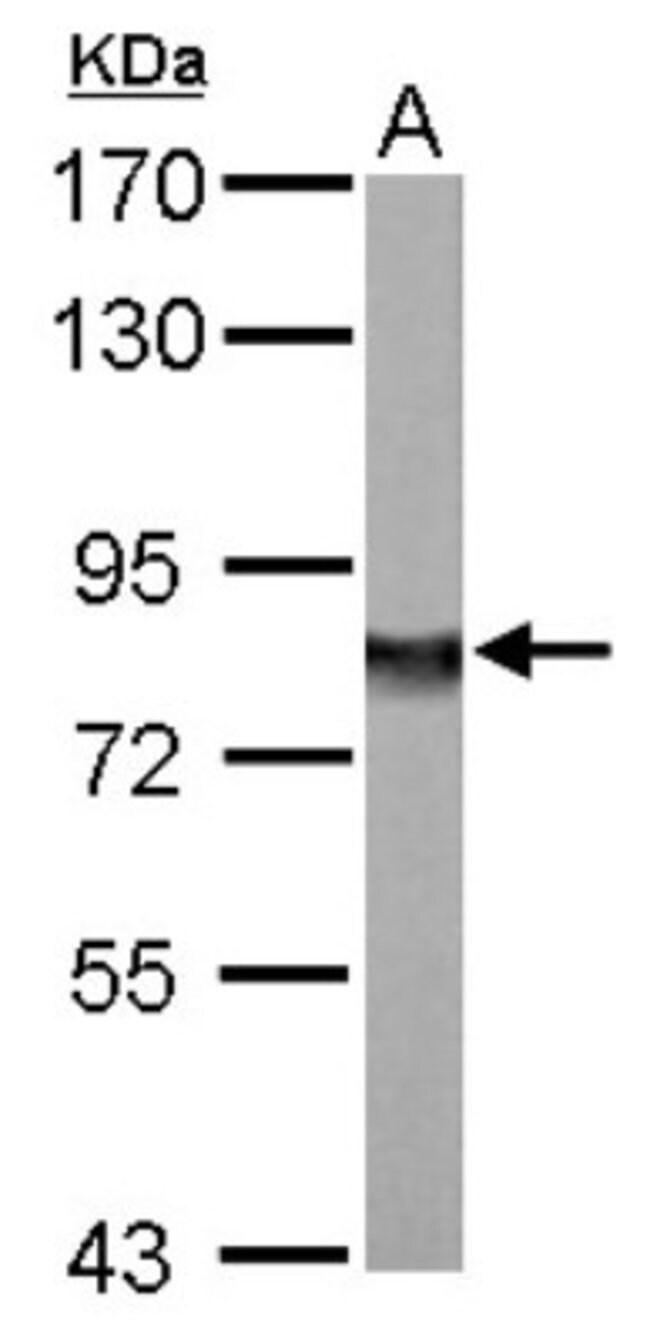 anti-Ndufs1, Polyclonal, Novus Biologicals 0.1mL; Unlabeled:Life Sciences