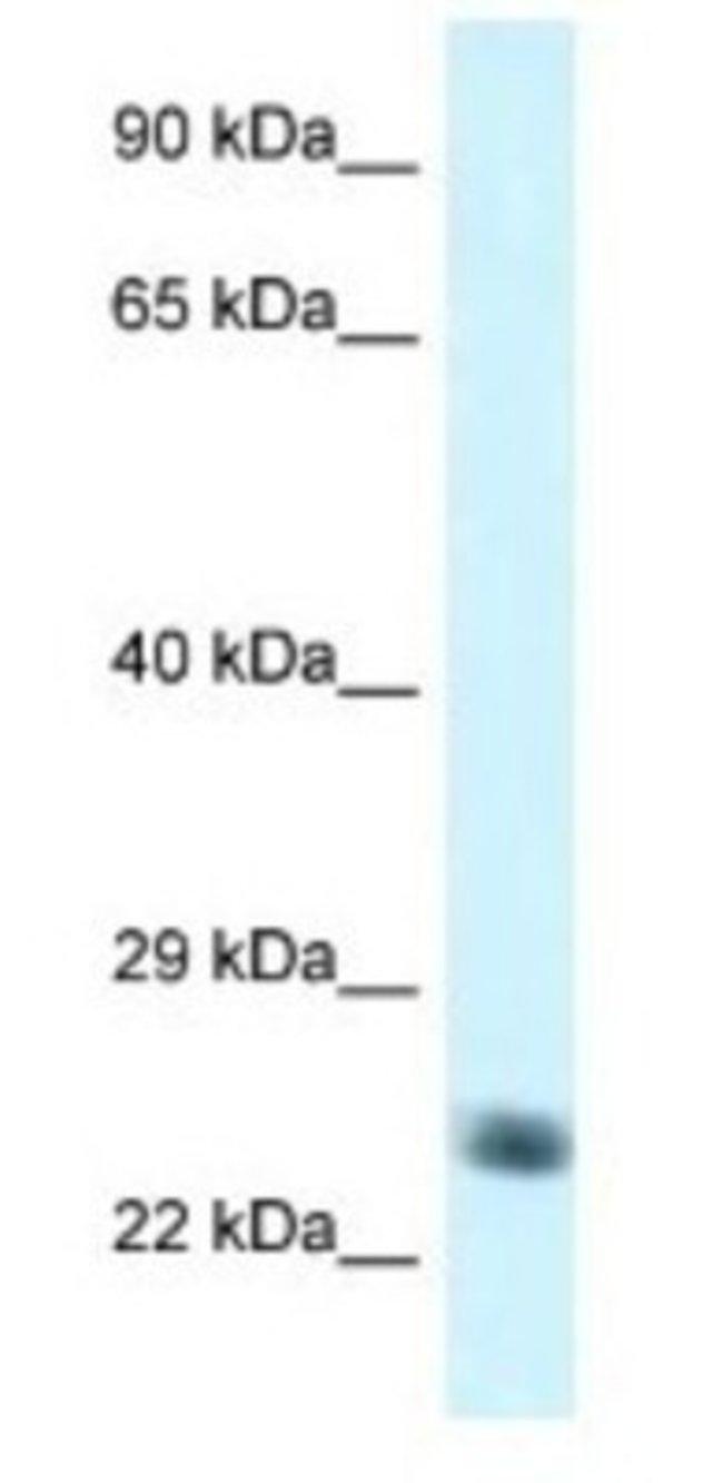 NDUFS8 Rabbit anti-Human, Polyclonal, Novus Biologicals 20µL; Unlabeled