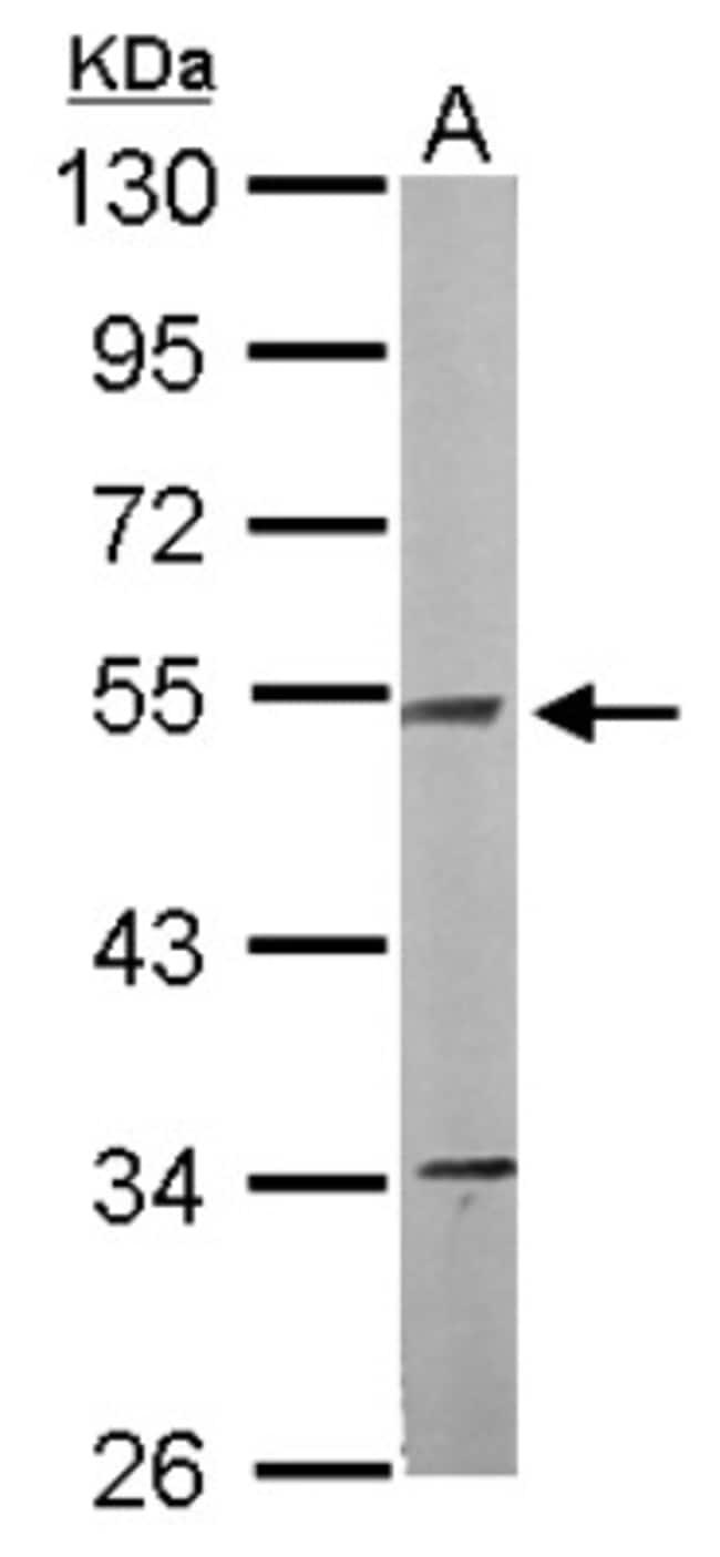 anti-NDUFV1, Polyclonal, Novus Biologicals 0.1mg; Unlabeled:Life Sciences