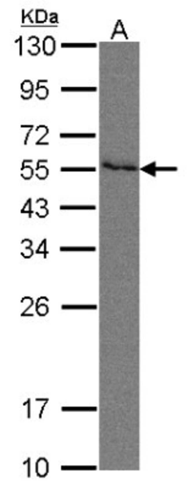anti-Nectin-2/CD112, Polyclonal, Novus Biologicals 0.1mL; Unlabeled:Antibodies