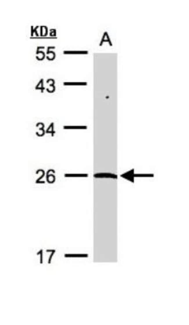 anti-NEDP1/SENP8, Polyclonal, Novus Biologicals 0.1mL; Unlabeled:Antibodies