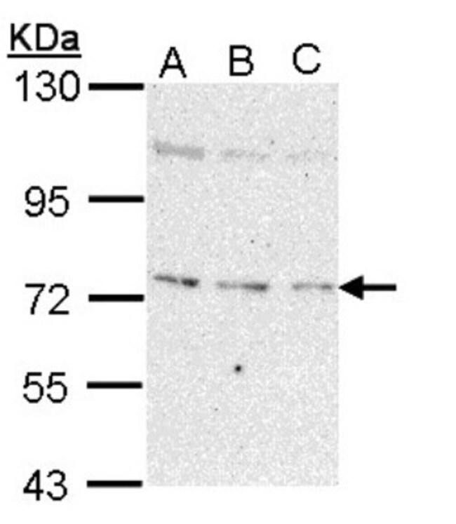 anti-NEK8, Polyclonal, Novus Biologicals 0.1mg; Unlabeled:Life Sciences