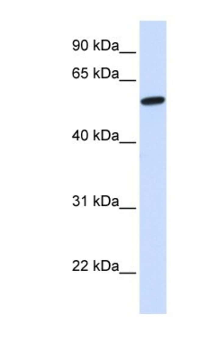 NELF Rabbit anti-Human, Polyclonal, Novus Biologicals 100µL; Unlabeled:Life