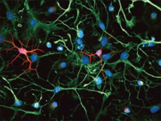 Novus Biologicals Neural Stem Cell Marker Antibody Pack 5 vials:Life Sciences