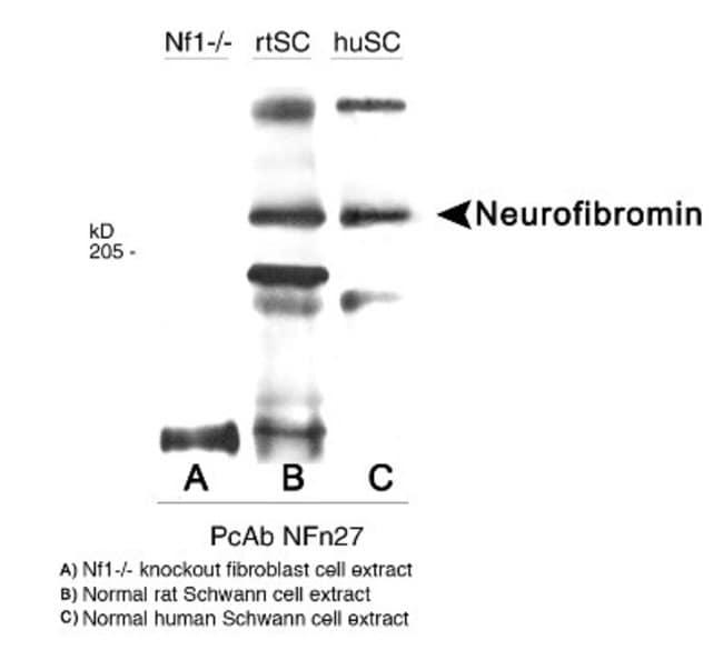anti-Neurofibromin 1, Polyclonal, Novus Biologicals:Antibodies:Primary