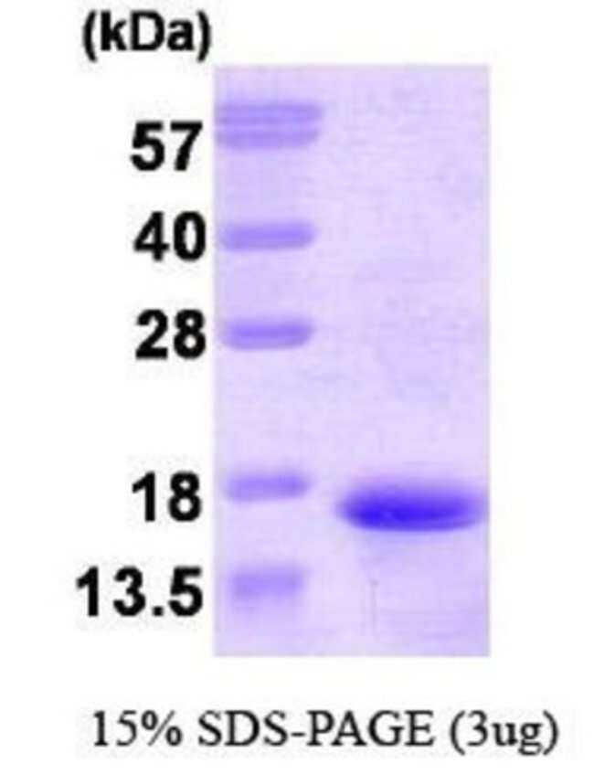 Novus Biologicals Human Neurokinin B Protein 0.1mg; Unlabeled:Life Sciences