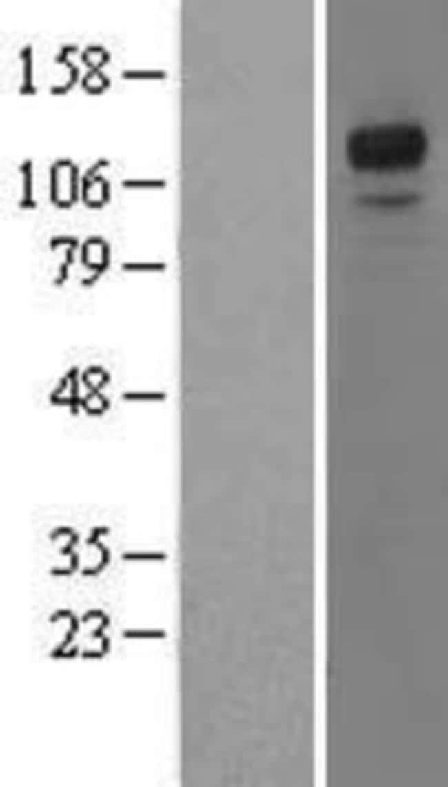 Novus Biologicals NFATC3/NFAT4 Overexpression Lysate (Native) 0.1mg:Life