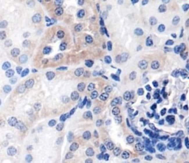 anti-NFkB1/NFkB p105, Polyclonal, Novus Biologicals:Antibodies:Primary